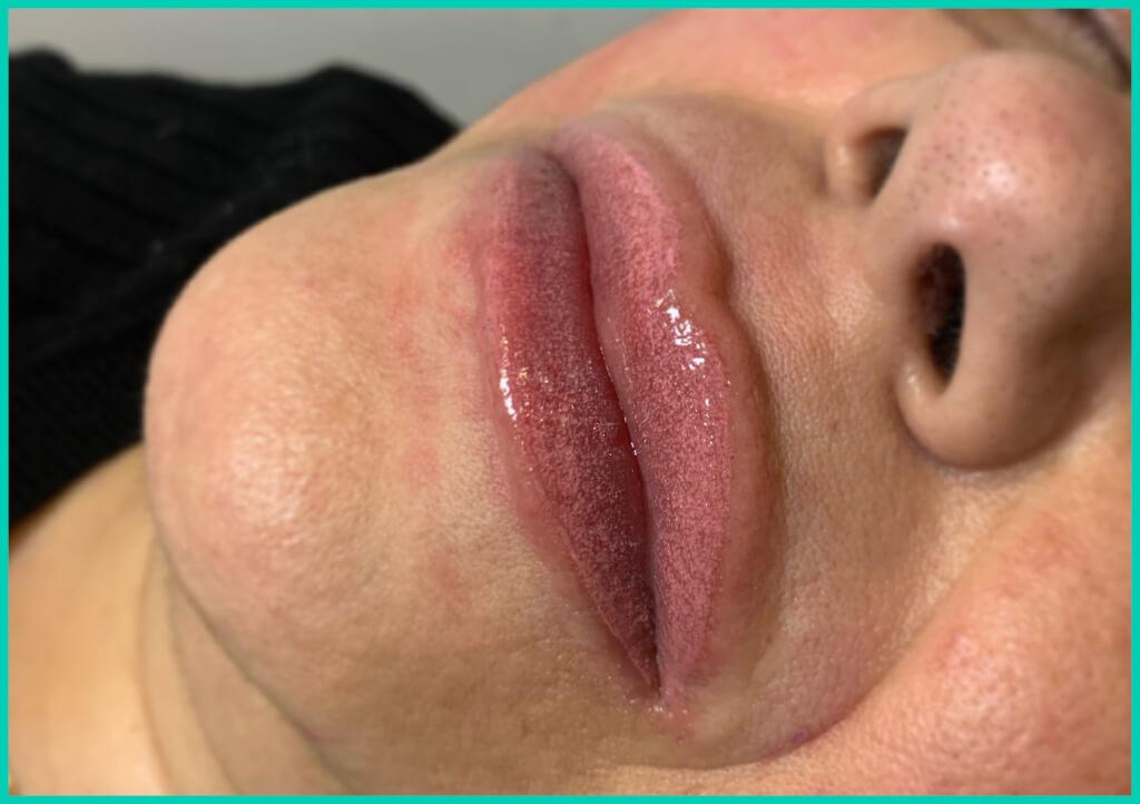 tatuaje labios micropigmentación